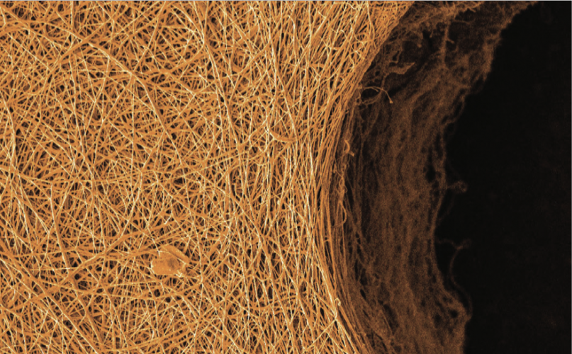 Tissue Engineering Scaffolds: Guiding the rise of Cell Therapies